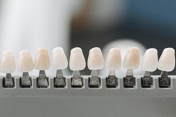 保険適用の白い歯とセラミックとの違い