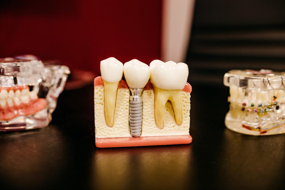 残った歯を大切にできる治療