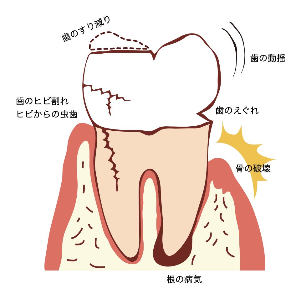 歯ぎしり・食いしばりで何が起こる?